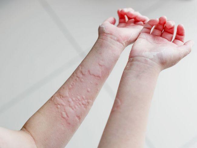 Žihľavka: Prečo vzniká a ako ju liečiť?