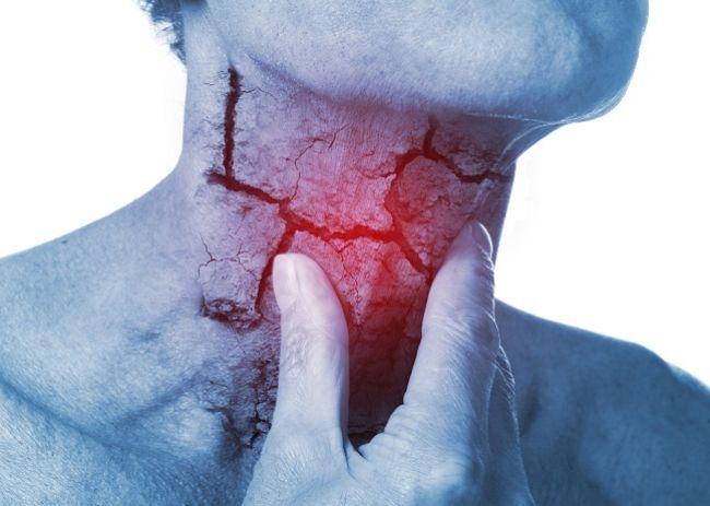 Streptokoková faryngitída: 7 prírodných liekov, ktoré vás zbavia bolesti