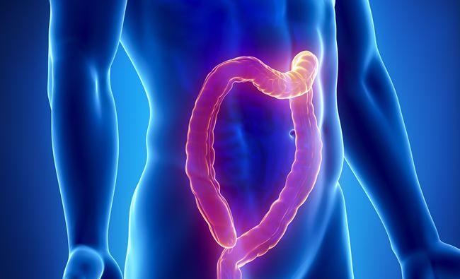 Krv v stolici môže signalizovať rakovinu hrubého čreva