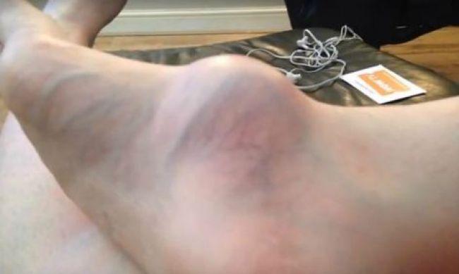 Foto: Žena prišla do nemocnice kvôli opuchnutému chodidlu, domov sa vrátila bez nohy