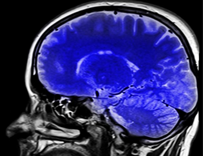 Tento faktor zvyšuje riziko demencie o 66%