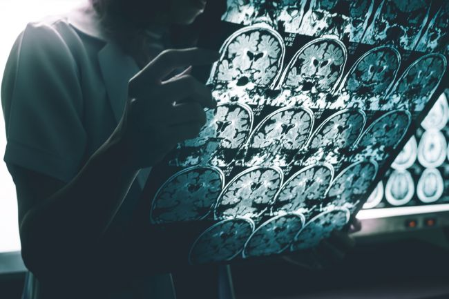 Výskum odhalil jednu z príčin vzniku Alzheimerovej choroby. Trpia ňou milióny ľudí