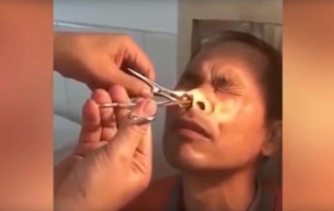 Video: Muža dlhšie bolel nos. Sledujte, čo mu z neho vytiahli!