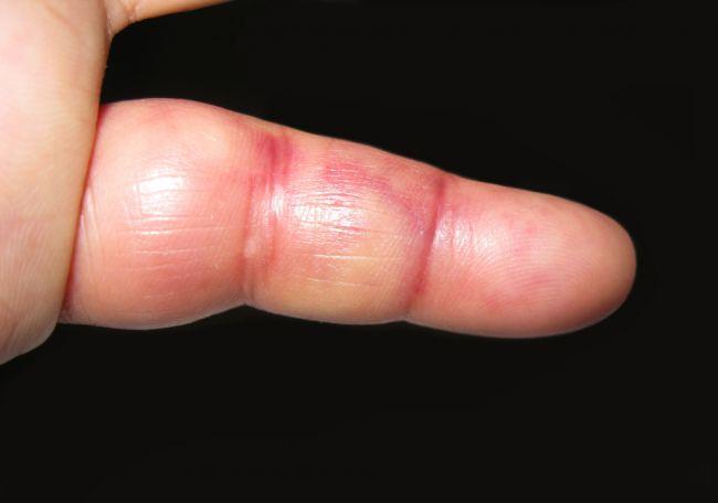 Žene znenazdajky opuchol malíček na ruke. Vykľula sa z toho nebezpečná diagnóza