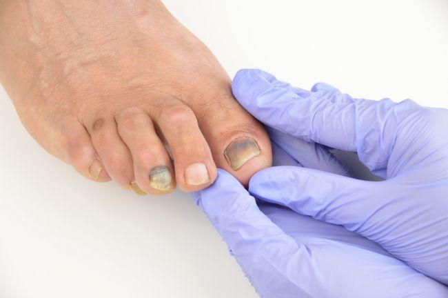 Čo o vašom zdraví dokáže prezradiť farba nechtov na nohách?