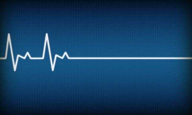 Ako dlho po smrti nám ostáva vedomie?