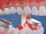 Video: Toto sa deje so zubami, keď vám dajú strojček