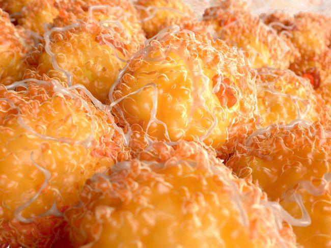 Viscerálny tuk: Tieto každodenné jedlá vás ho zbavia