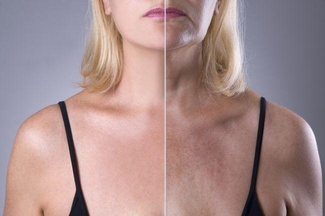 Toto sa deje s vašim telom každých 10 rokov