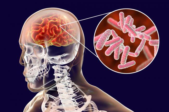 Muž dostal infekciu mozgu po použití vatovej tyčinky, lekári dvíhajú varovný prst