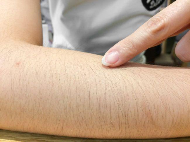 Nadmerné ochlpenie: Čo značia chĺpky na rôznych častiach ženského tela