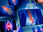 Tieto typy bolesti sú spojené s nedostatkom vitamínu D