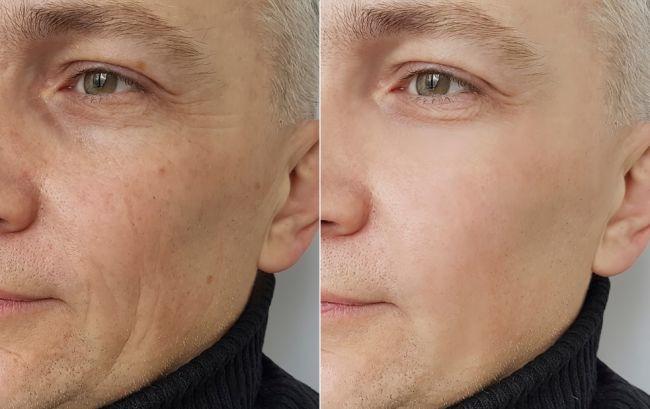 Vedec tvrdí, že starnutie je choroba. Takto sa dá podľa neho liečiť