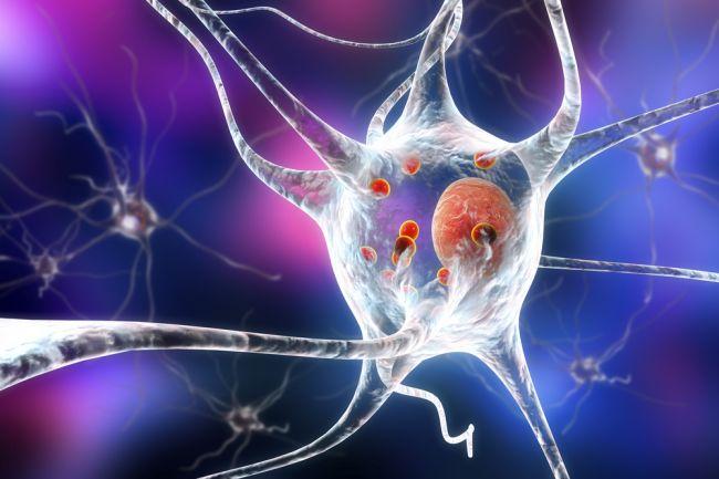 Riziko vzniku Parkinsonovej choroby sa vekom zvyšuje, pomáha hĺbková stimulácia mozgu