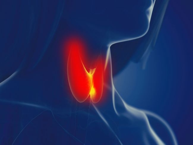 Problémy s otehotnením môže spôsobiť nesprávne fungovanie štítnej žľazy