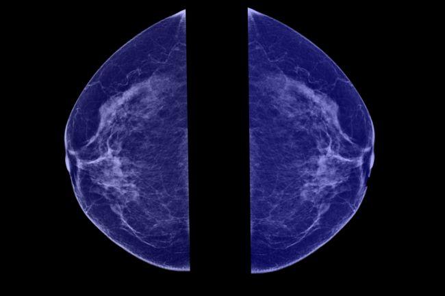 Kalcifikáty v prsníkoch: Sú dôvodom na obavy?