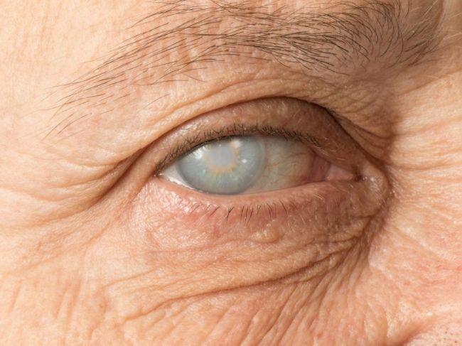 7 nenápadných príznakov sivého zákalu, o ktorých nemusíte vedieť