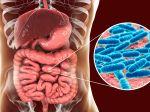 Nepriaznivé účinky probiotík: Takto vám môžu škodiť