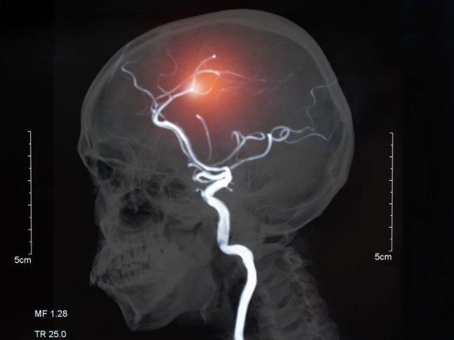 Pri náhlej cievnej mozgovej príhode sa netreba zdržiavať prevozom pacienta