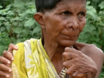 Video: Žena sa narodila s 32 prstami, jej okolie si myslí, že je čarodejnica