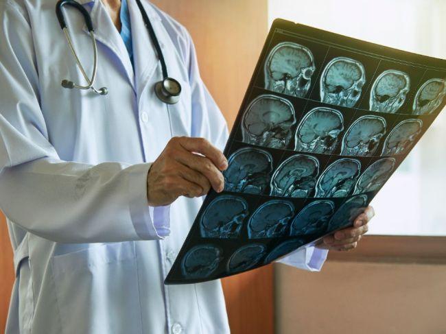 Takýto vplyv má obezita na zdravie mozgu