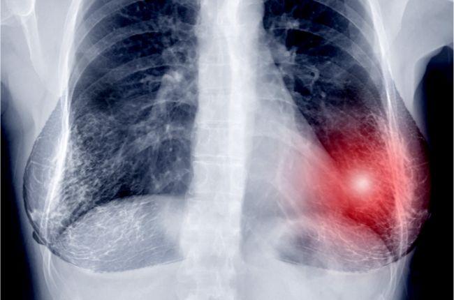 Mamograf dokáže odhaliť nielen rakovinu. Lekári našli prekvapivé využitie