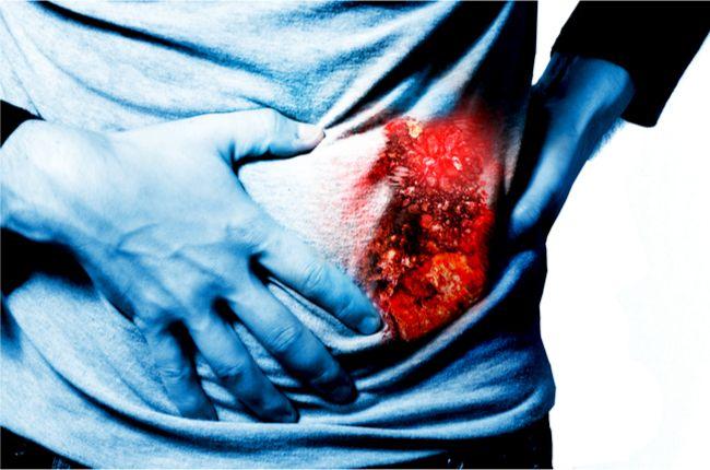 Zlyhanie obličiek: Príznaky, ktoré nesmiete ignorovať