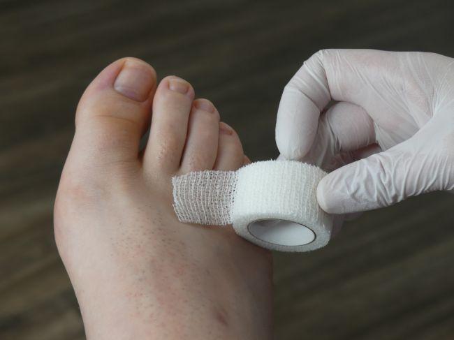 Narazený palec na nohe: Kedy je zranenie prsta vážne a ako ho liečiť