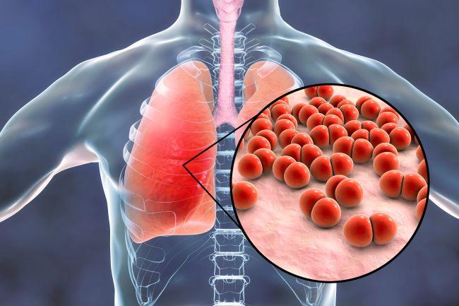 Bronchitída a pneumónia: Ako rozoznať rozdiel v infekcii