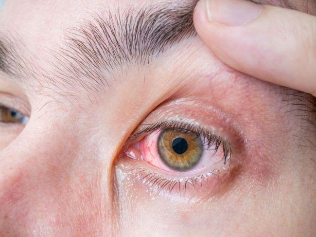 5 príznakov, ktoré naznačujú, že ste prekonali COVID-19 bez toho, aby ste o tom vedeli