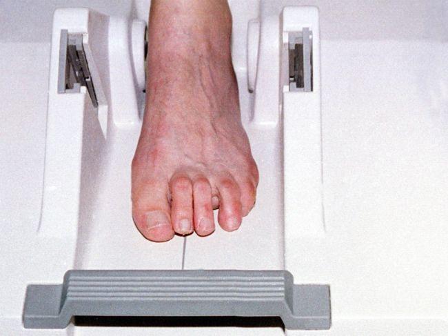 Osteoporózu majú najmä ženy, zvyšuje riziko zlomenín