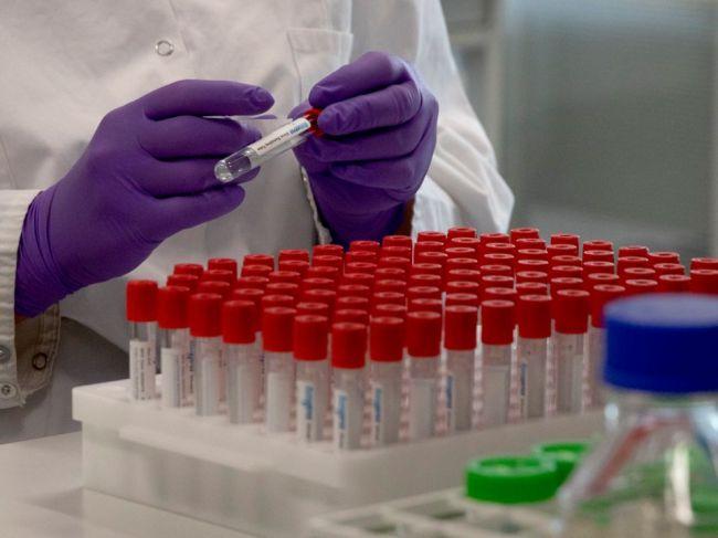 Pribudlo 13 nových prípadov nakazených koronavírusom