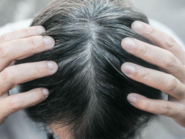 Stres alebo staroba? Čo sa vám snažia povedať vaše šedivejúce vlasy