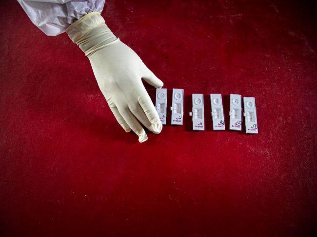 Za týždeň pribudli vo svete takmer dva milióny prípadov COVID-19