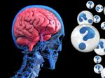 Trvalé následky koronavírusu: Toto postihne až tretinu pacientov
