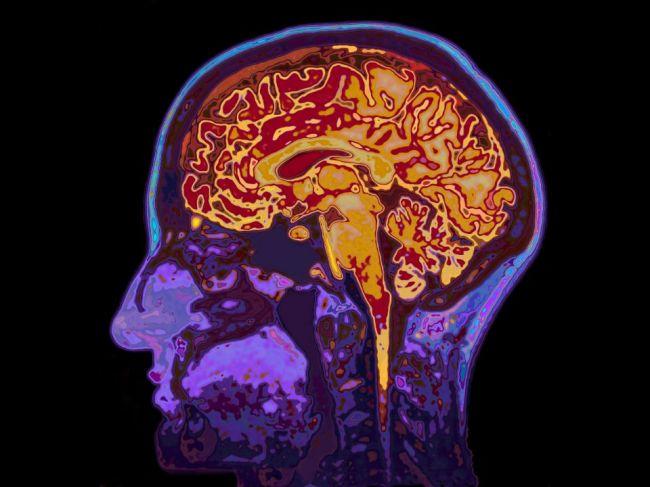 V Kanade útočí neznáma mozgová porucha, lekári nepoznajú jej príčinu