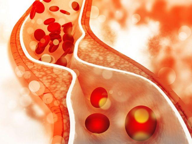 Najlepší nápoj na zníženie hladiny cholesterolu už máte v chladničke