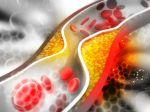Vysoká hladina cholesterolu vplýva na vznik neurologického ochorenia. Toto treba sledovať