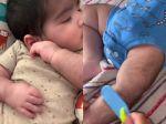 Video: Svojmu bábätku musím česať chlpy na tele. Za všetko môžu lieky