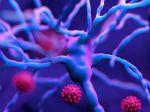 Na videu po prvý raz zachytili šírenie koronavírusu cez pľúca do mozgu