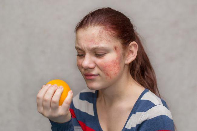 Alergia a potravinová intolerancia: Toto sú štyri najväčšie mýty, ktoré vám škodia