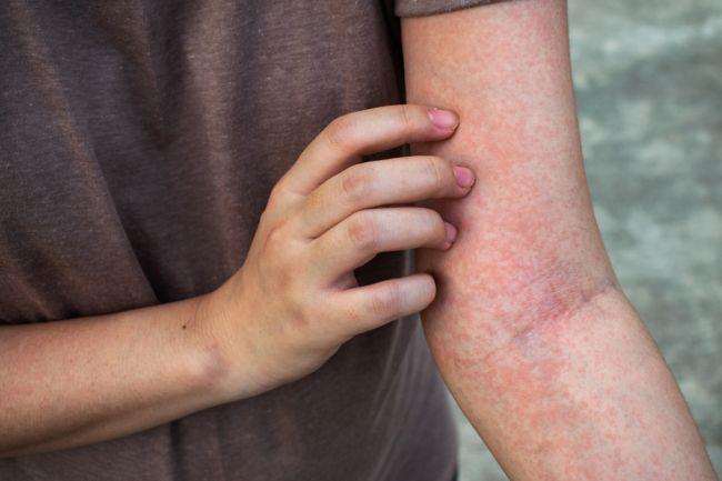 Najnebezpečnejšie druhy vyrážok: Môžu naznačovať rakovinu či meningitídu